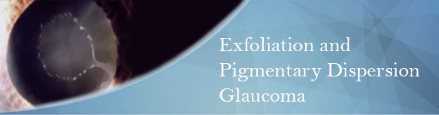 Exfoliation and Pigmentary Dispersion Glaucoma