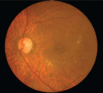 Epidemiological Evidence of an Epidemic: Diabetic Retinopathy course image