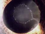 Exfoliation and Pigmentary Dispersion Glaucoma course image